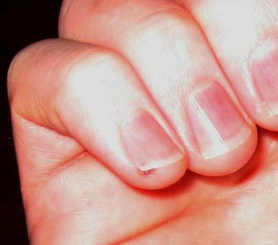 finger02.jpg